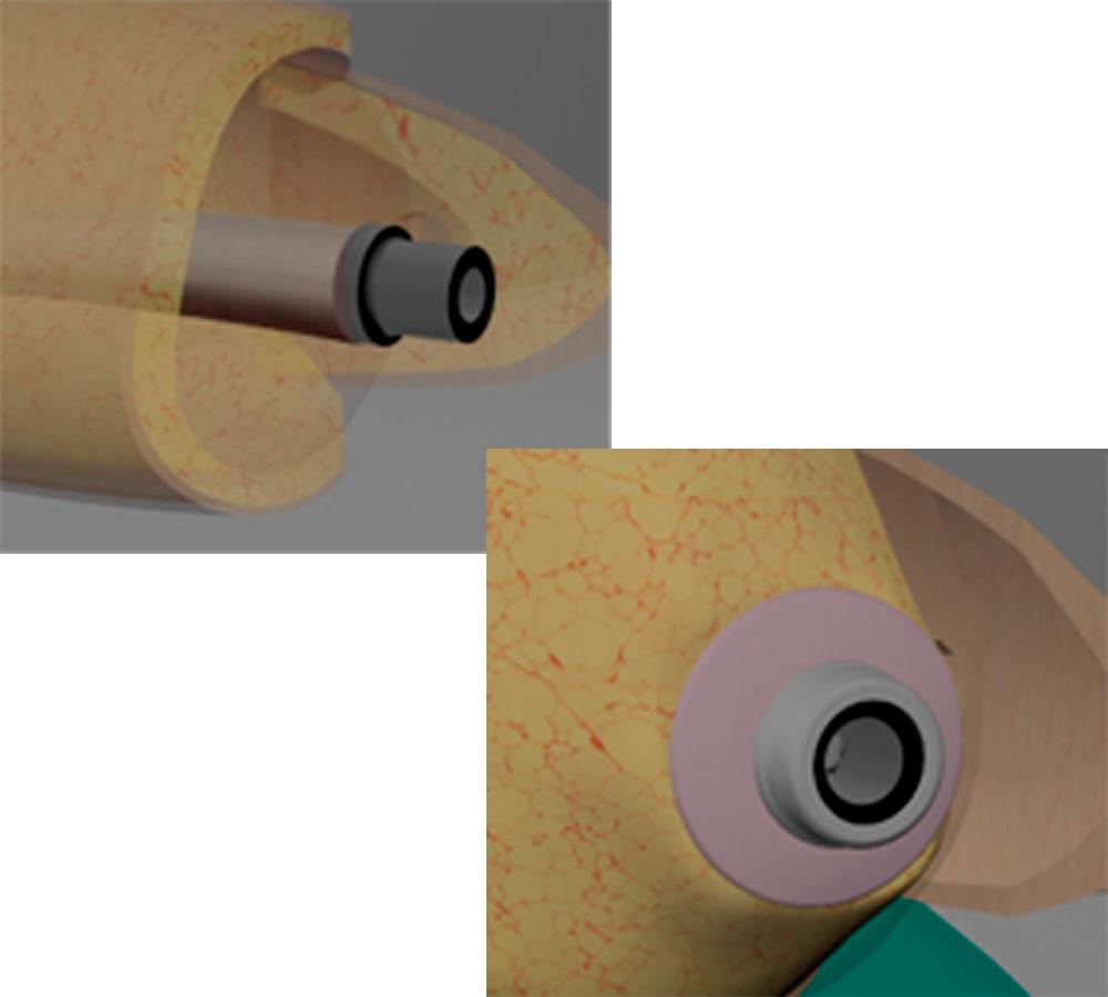 Exo prosthesization